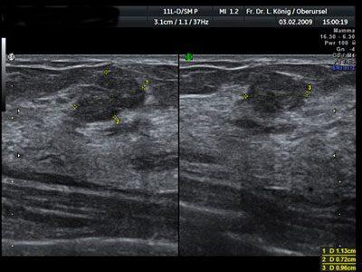 Auf diesem Bild ist ein gutartiges, glatt begrenztes Fibroadenom zu erkennen.