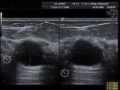 Hierbei handelt es sich um eine flüssigkeitsgefüllte Zyste in der Brust. Das ist im Ultraschall besonders gut zu erkennen und ist fast immer gutartig.